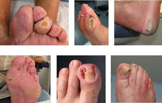 Los medicamentos del hongo de los pie
